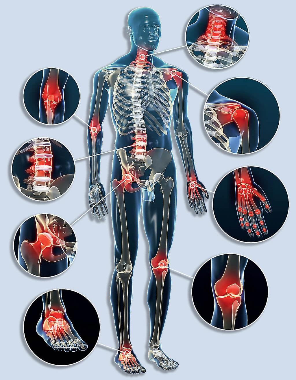 térd kopáskezelés csípőízület fáj a tünetekről