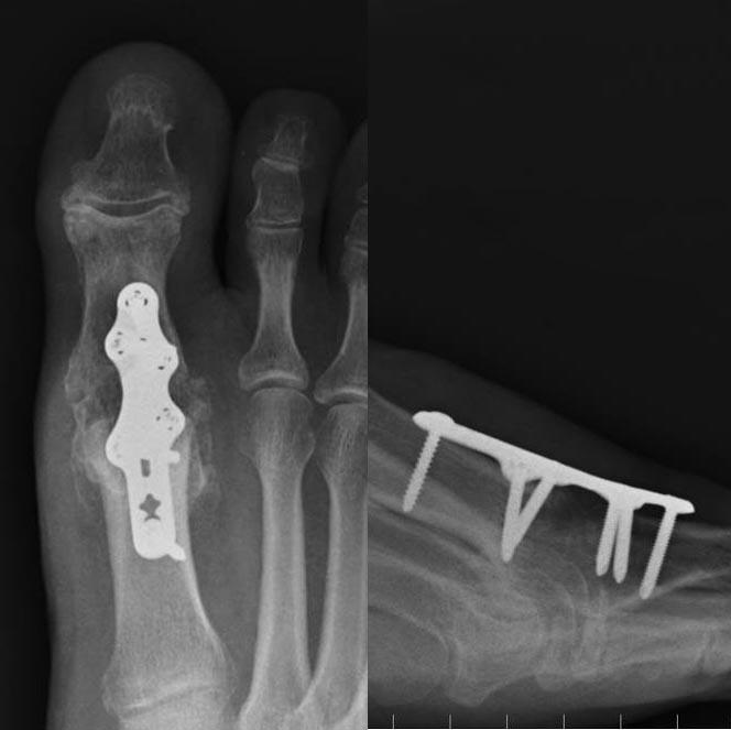 1st mtp joint osteoarthritis