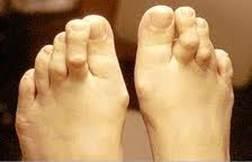 súlyos fájdalom a nagy lábujj ízületében)