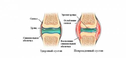 a vállízület radiológiai tünetei)