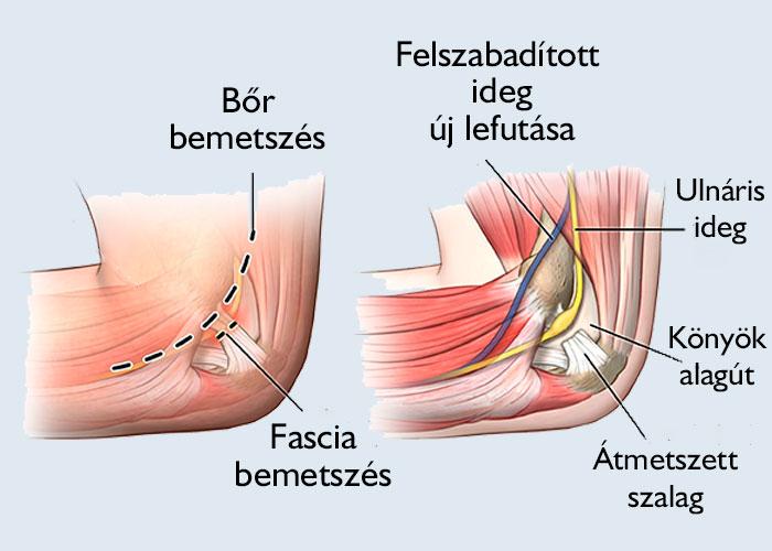 könyök alagút szindróma műtét
