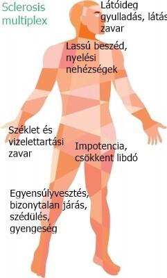 a csípőízület kötegeinek és izmainak károsodása)