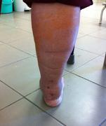 a bokaízület sérülései és betegségei