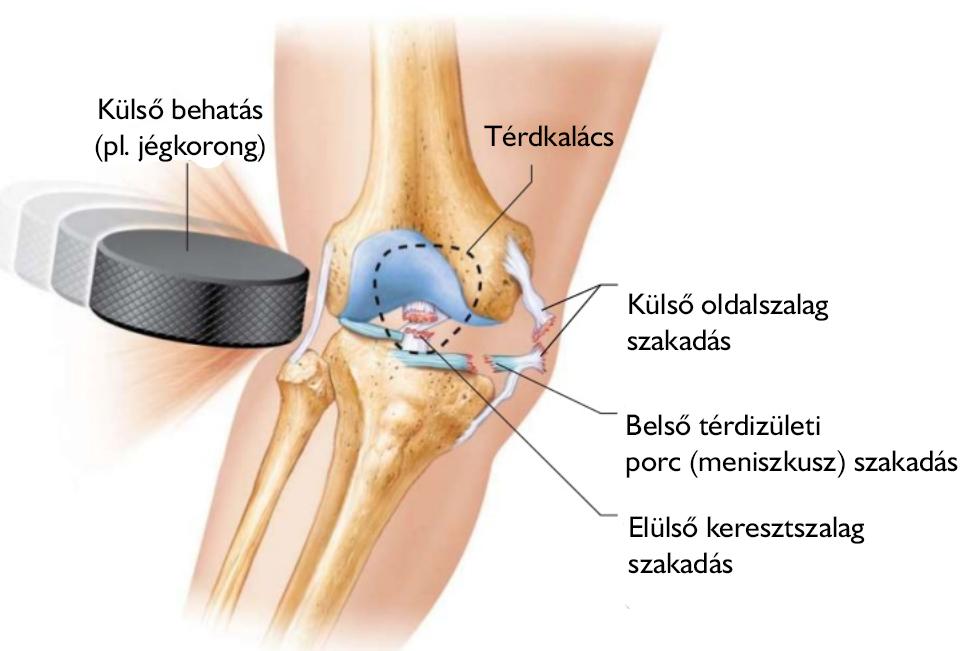 a térd sérüléseinek típusai)