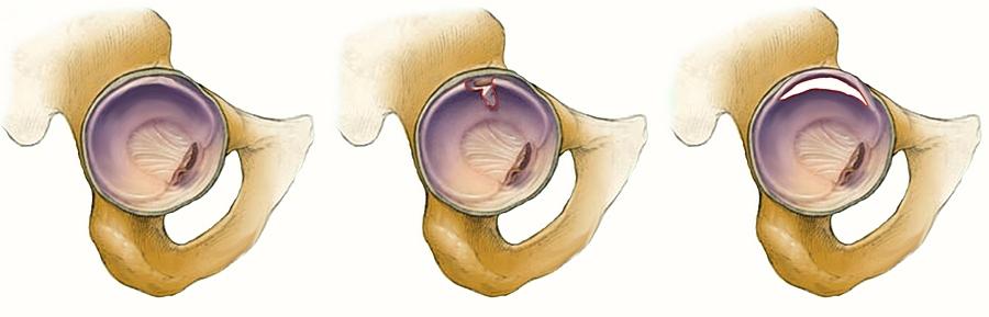a jobb térdízület artrózisa 1 fok