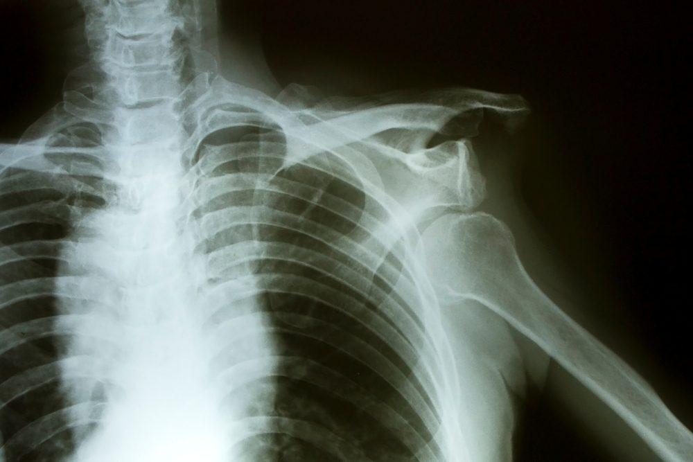 a váll sérülések kezelése articsóka az ízületek kezelésében