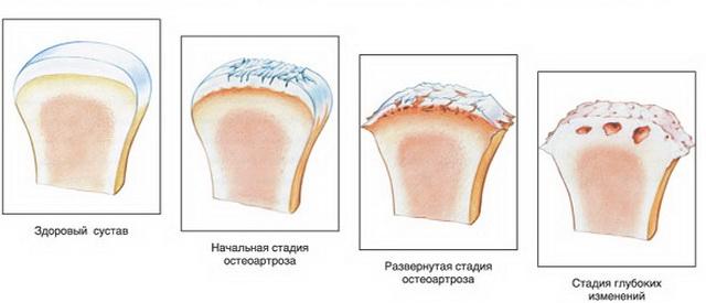 a szubchondrális ízületek osteochondrosisa)