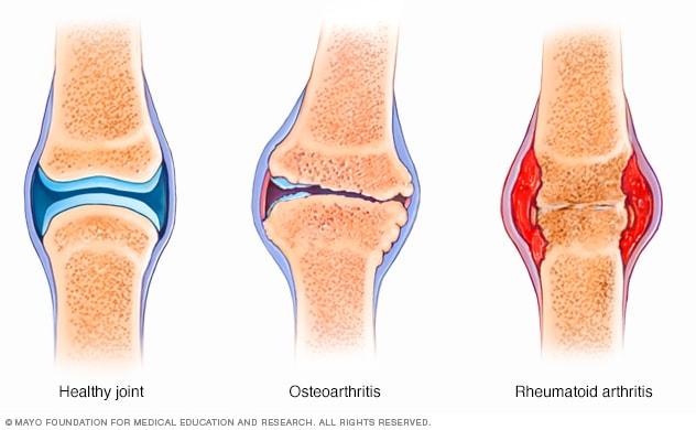 készítmények rheumatoid arthrosis kezelésére)