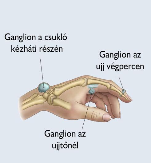 ízületi előkészítés arthrocelsus)