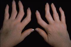 rheumatoid arthritis a kéz hogyan kell kezelni