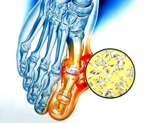 izomfájdalom a térdízület kezelésében)