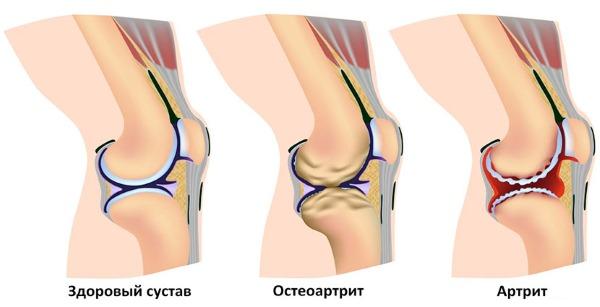 lábak deformáló artrózisa 2 fokos kezelés lehetséges melegíteni a beteg ízületeket artrózissal