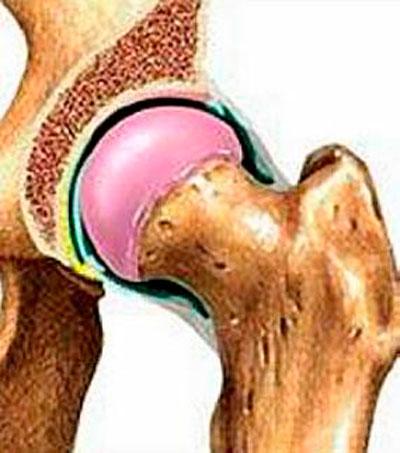 csípőízületek gyulladása a lábízület ízületi gyulladása