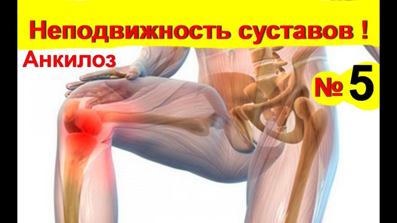 könyökízület ankylosis kezelése)