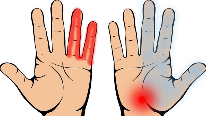 A közös kéz nagyon fáj. Kéz a fájdalom karjában: miért fáj és hogyan gyógyítható? - Könyök
