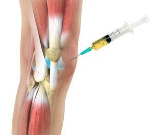 készítmények artrózis kezelésére