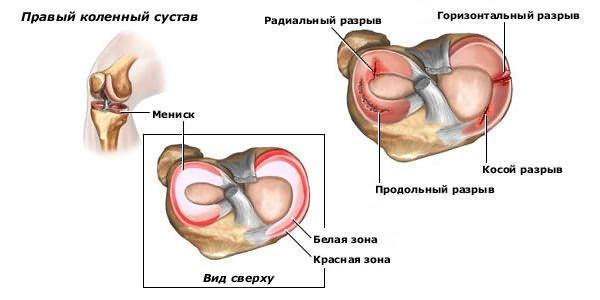 térdízületi ízületi artrozis alflutop kezelés izomfájdalom alkar könyökízület