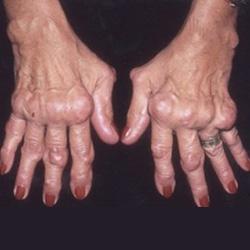 zsibbadás rheumatoid arthritisben