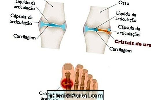 A lábujjak deformációja artritiszben