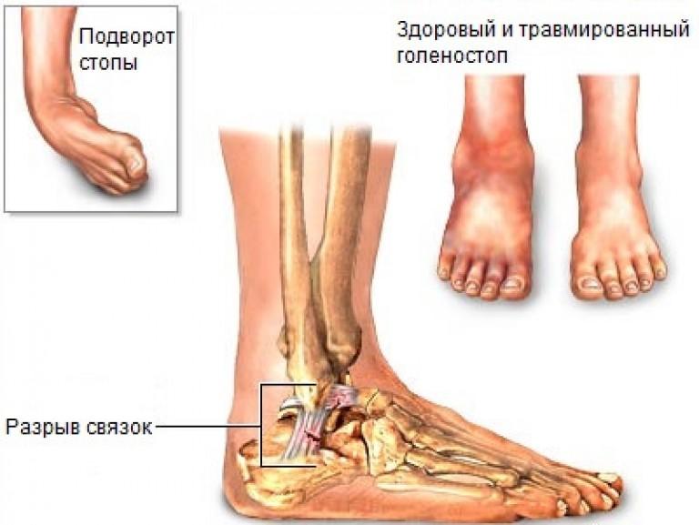 a bokaízület sípcsont-ligamentumainak károsodása