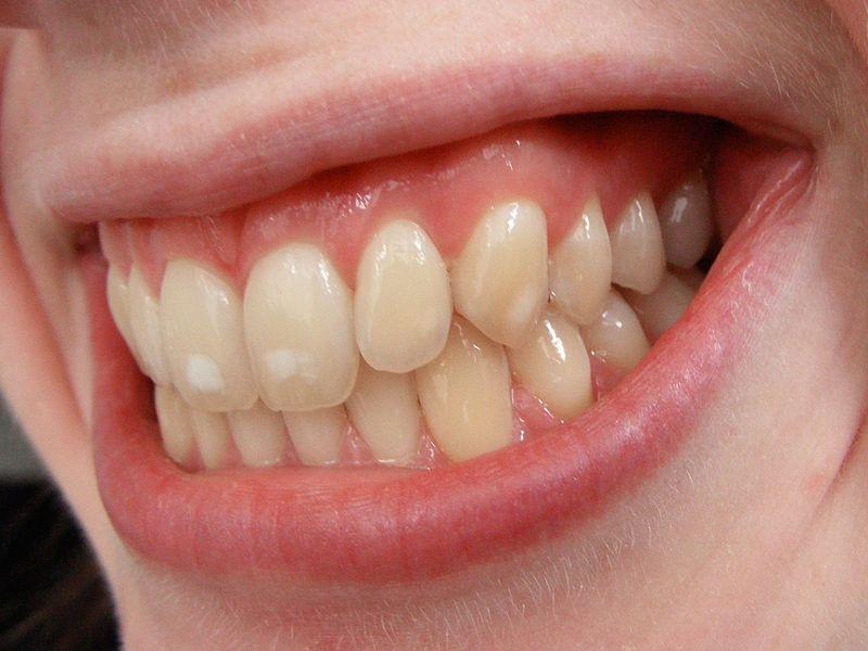 Fehér foltok a fogakon – Mi okozza, hogyan kezeljük? >> NaturaDent