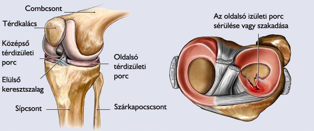 térdízületet megrontja fáj a bal hátsó ízület