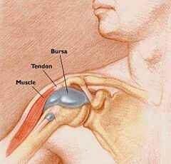 a térd bursitisének kezelése