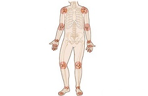 artrózis artritisz otthoni kezelés)