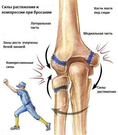 a könyökízület sérülése a sportolókban