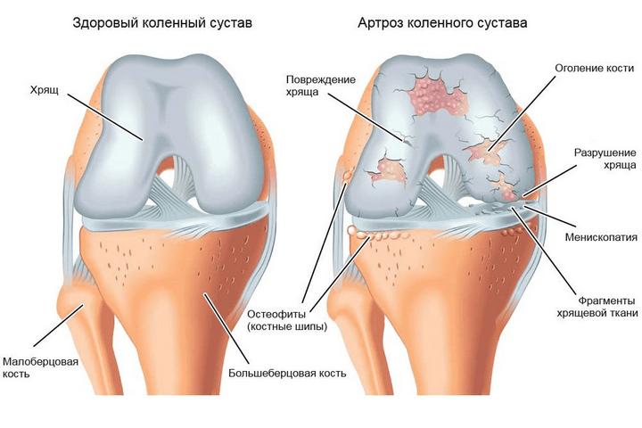 a térdízület meniszkuszának trauma utáni gyógyulása