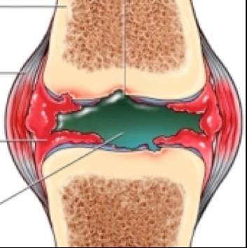 artrózis jelenléte a középső láb ízületeiben mi van az ízületi betegséggel