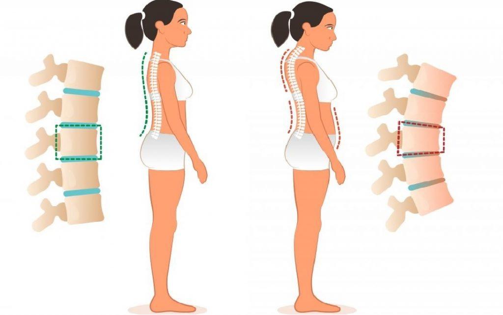 fáj a hát és adja a csípőízület enyhíti a fájdalomjavító ízületeket
