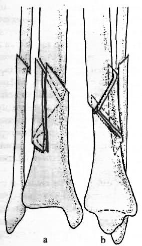 az alsó láb hibás ízületei töréskezelés után