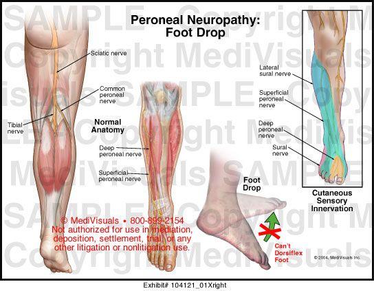 a lábfej lábszárhártya-kezelése)