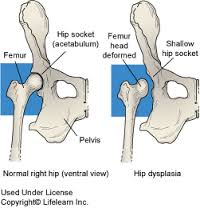 csípőízületi deformitás diagnosztizálása duzzanat ízületi gyulladás hogyan kezelni