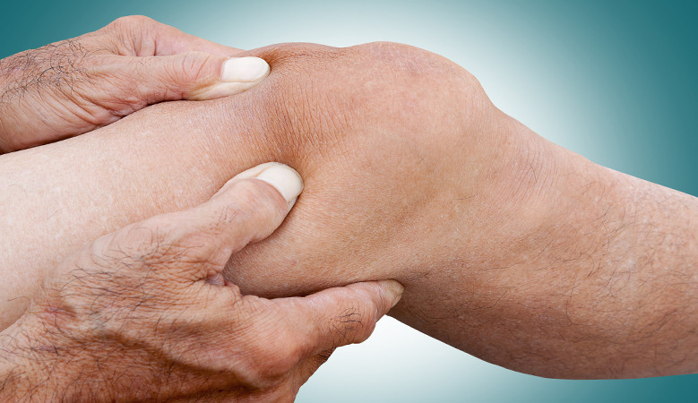 a térdízületek fájdalmainak okai és kezelése