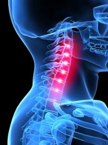 milyen kenőcs hatásos a nyaki osteochondrozisban)