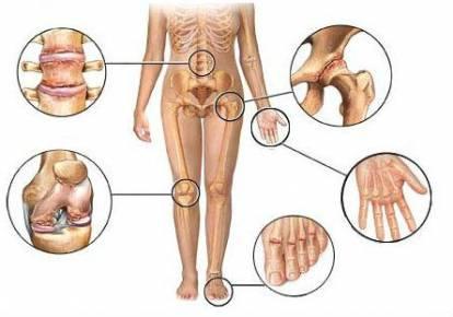 voltaren kenőcs ízületi fájdalmak kezelésére fájdalom rajzolása a jobb kéz ízületében