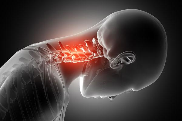 degeneratív ízületi betegségek a nyaki gerincben)