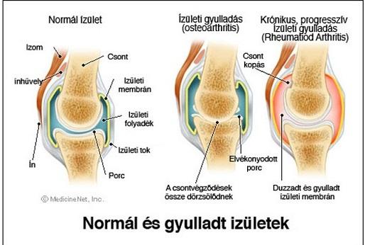 hatékony térdízület ízületi gyulladások)