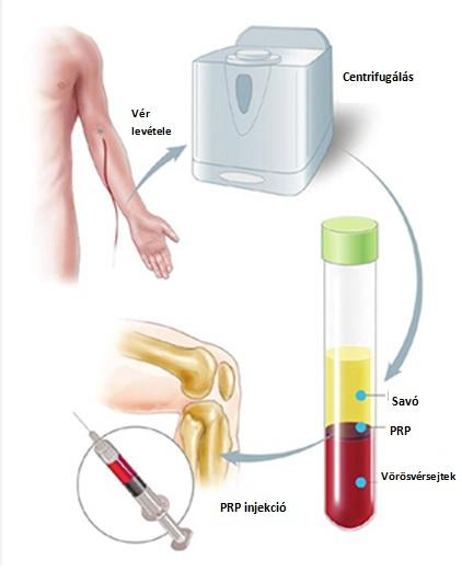 injekciók térd ízületi gyulladás kezelésére