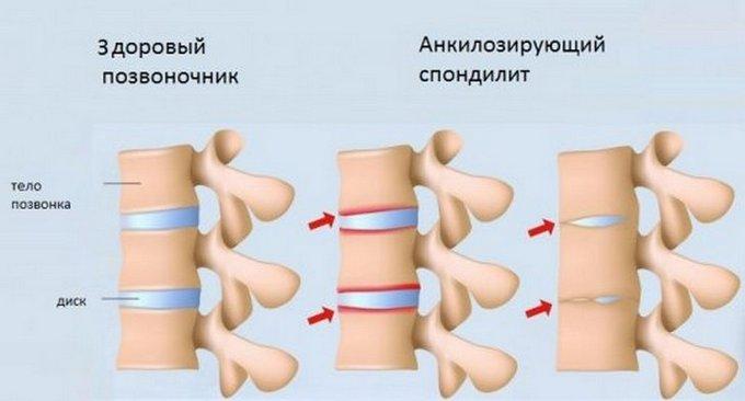 midocalm fájdalom a vállízületben