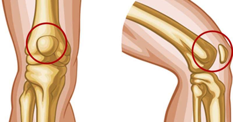 Mi állhat a térdfájdalom hátterében? Így előzze meg vagy kezelje a problémát!