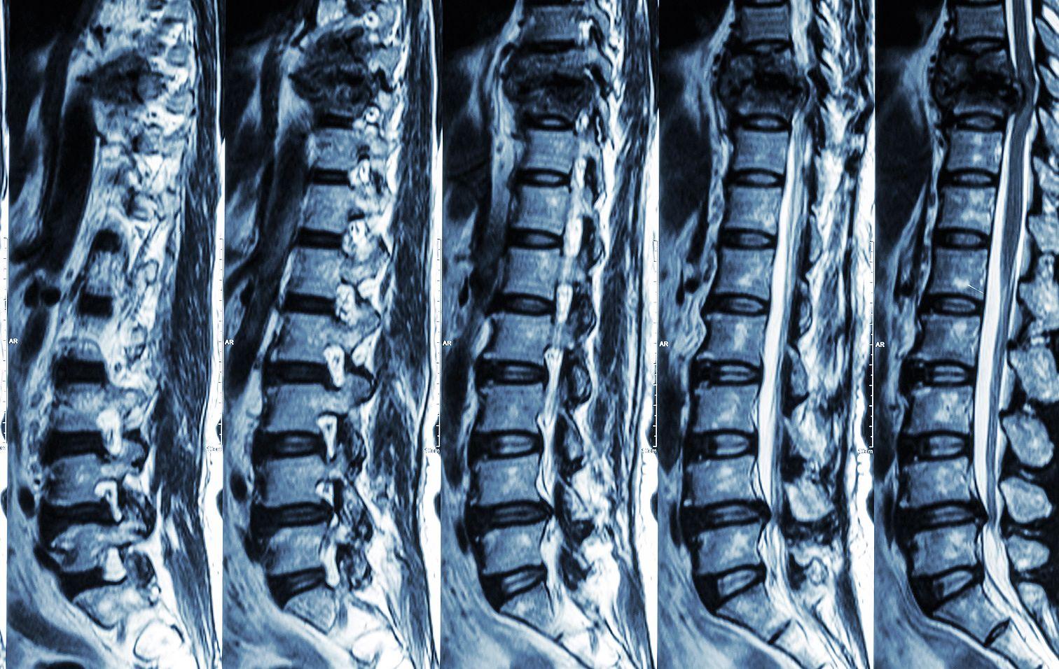 ízületi arthrosis ortopédia